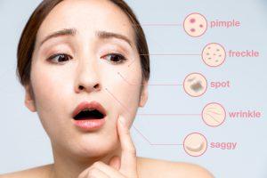シミ・くすみ・汚肌。。老けを越えて汚い!?大人の肌荒れの改善方法