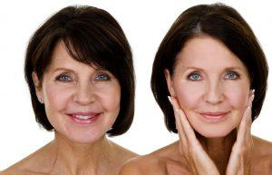 老け顔の特徴と改善方法